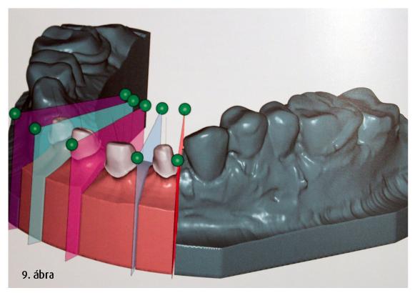 9. ábra: Beszkennelt gipszminta szekcionálása  CAD-rendszerben.