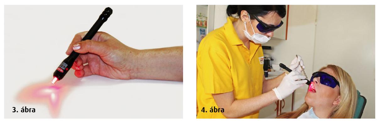 3. ábra: Safe lézer optikai vége és a fénynyaláb. 4. ábra: Szájüregi kezelés safe lézerrel - asszisztensi használat.