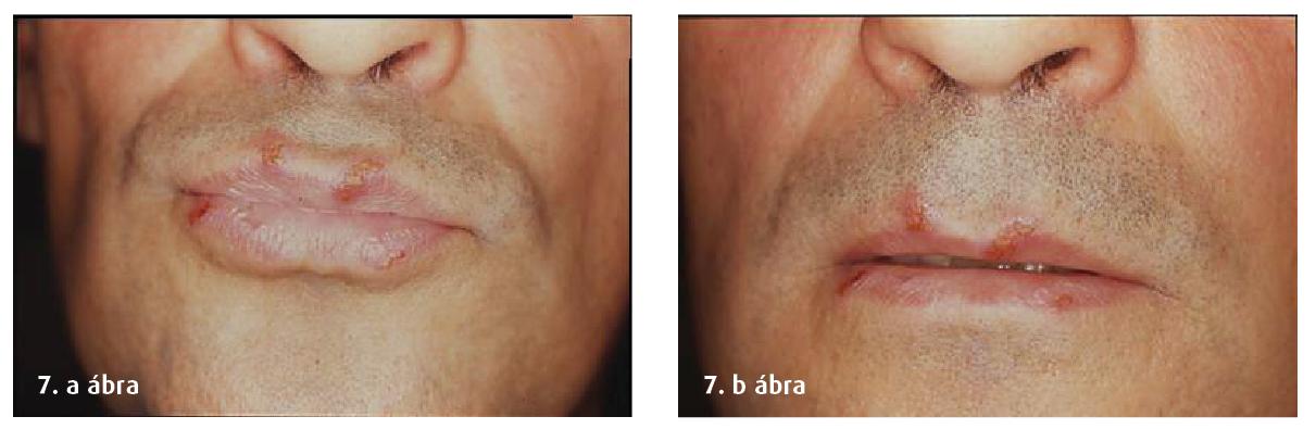 7. a és b ábra: Herpes kezelését a páciens otthonában is végezheti (kezelés előtti és utáni fotó).
