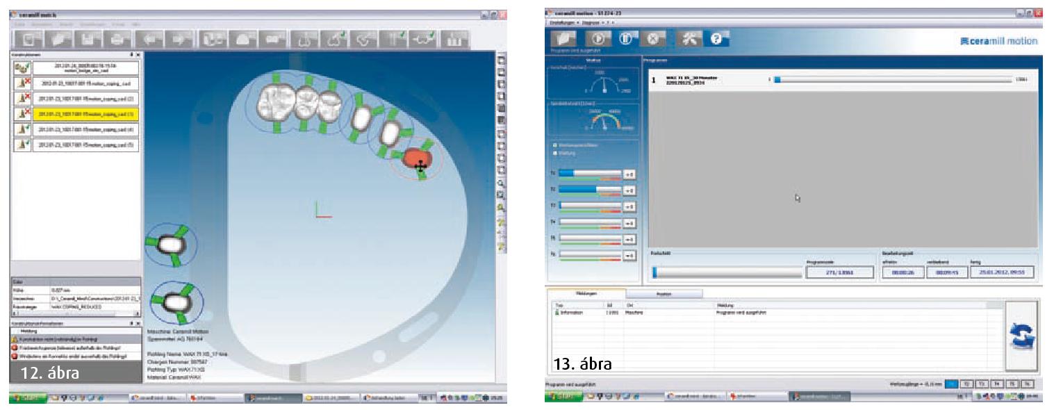 12. ábra: A szerkesztés egyszerű ráhelyezése  a nyers tömbre. 13. ábra: A Ceramill Motion faragóegységhez kapcsolódva többek között a munkaeszközök állapotát is láthatjuk a képernyőn.