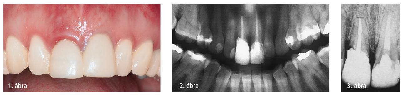 1. ábra: Kiindulási helyzet. 2. ábra: Kiindulási helyzet radiográfiás vizsgálata. 3. ábra: Részletes röntgenvizsgálat.