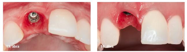 13. ábra: A lágyszövet okkluzális nézete az osszeointegráció végén. 14. ábra: A lágyszövet faciális nézete az osszeointegráció végén.