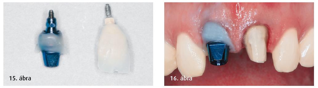 15. ábra: Lenyomatköpeny a cervikális területen. 16. ábra: A preparált természetes fog és a XiVE S plus implantátum lenyomata.