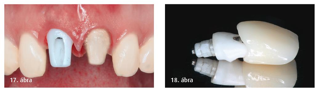 17. ábra: Teljes kerámia korona és a hozzá tartozó  implantátum-fej (CERCON). 18. ábra: A módosított CERCON kerámiafej bepróbálása.