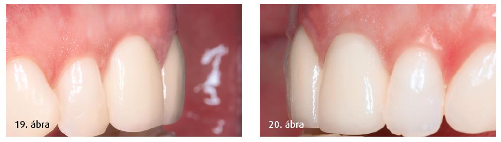 19. ábra: A végleges klinikai eredmény: bukkális nézet. 20. ábra: A helyreállított természetes fog bukkális nézetből.