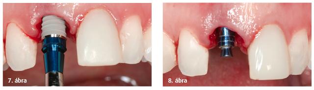 7. ábra: A XiVE S implantátum behelyezése. 8. ábra: Az implantátum végleges helyzete.