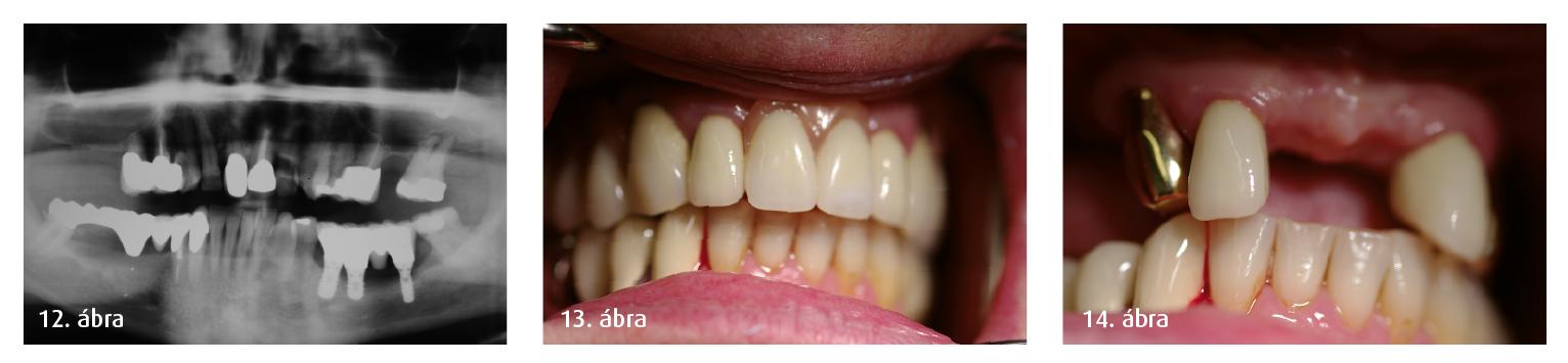 12. ábra: Parodontális léziók (vertikális csontdegeneráció) a 15-ös, 14-es, 24-es, 25-ös fognál. 13–14. ábra: Néhány fogat el kellett távolítani, és egy kivehető teleszkópos protézist is behelyeztünk.
