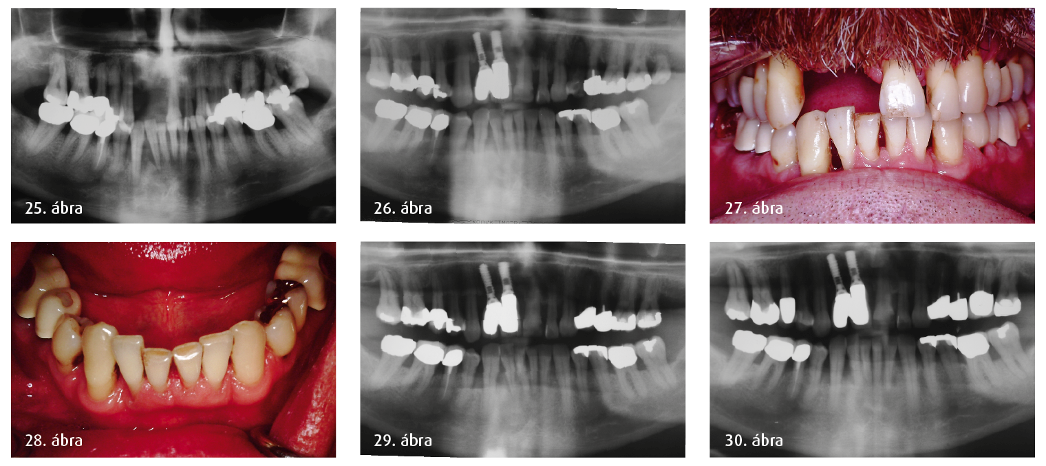 25. ábra: Röntgenfelvétel 1994-ből (egy korábbi fogorvos kérésére). 26. ábra: Panorámafelvétel 1995-ből. 27–28. ábra: Kezdeti klinikai felvételek 1995-ből. 29. ábra: Kontroll-röntgenfelvétel 2001-ből. 30. ábra: 11 éves kontroll 2006-ban.
