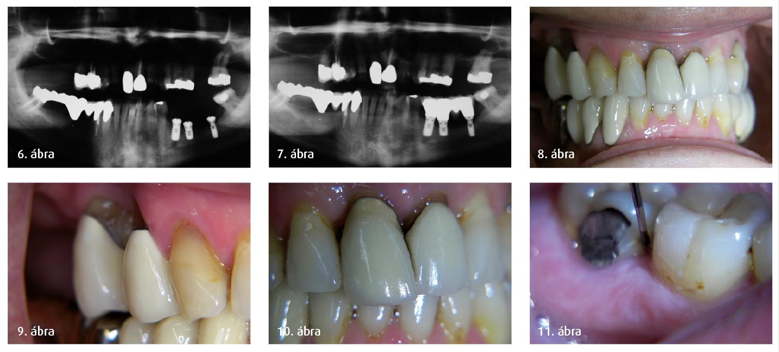 6. ábra: Panoráma-röntgenfelvétel az atrofizált mandibuláról a három rövid implantátum behelyezése után. 7. ábra: Kontrollvizsgálat 2001-ben. 8–11. ábra: Klinikai megfigyelések 2009-ben, a maxilláris pótlásokat megelőzően.