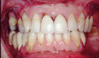 Fogfelszín-dekontamináció diódalézerrel a parodontitis terápiájában