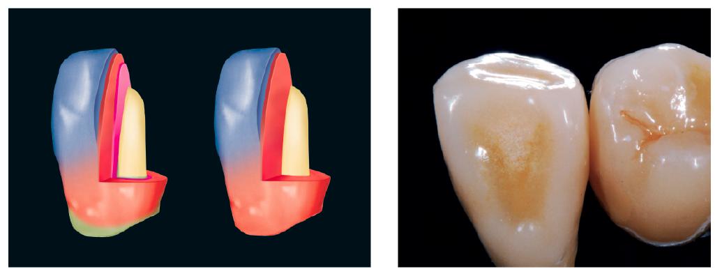 """23. ábra: Rétegzés """"Base Dentin""""-nel és anélkül. 24. ábra: A fényégetéssel üvegesítjük a test felületét – lepattanások elleni garancia."""