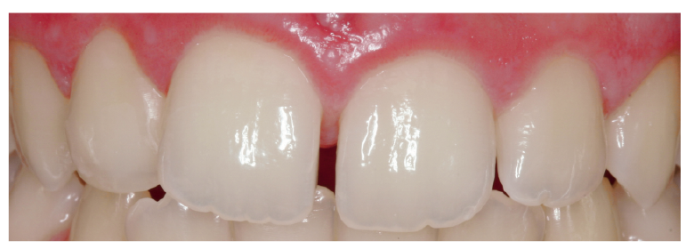 3. ábra: Fiatal megjelenésű fogak magas mértékű opaleszcenciával.