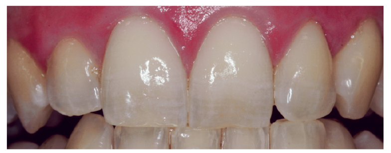 5. ábra: Öregedéssel a kopás és meszesedés hatására elvesznek az opalizáló részek.