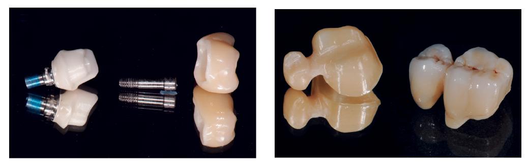 8. ábra: A nyomó- és nyíróerők implantátumos restaurációknál a hiányzó receptorok miatt igen magasak. 9. ábra: Nagy nyomó- és húzóerők a lengőtagos hidakon.