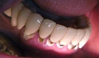 """Gondolatok a """"komplex dentálhigiéniai kezelés""""-ről a fogorvosi praxisban"""