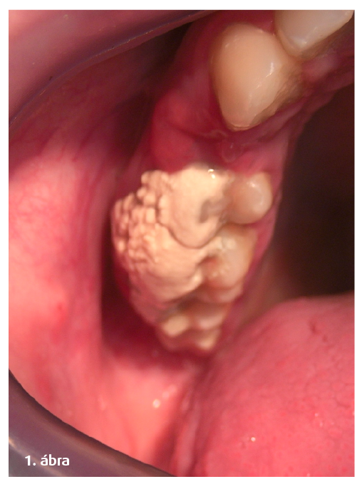 """1. ábra: Karfiolszerű fogkővek a rágózónában  (""""rövid a fogkefe...?)."""