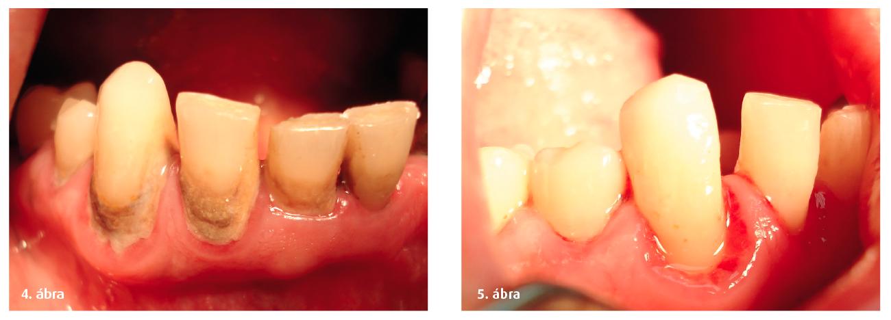 4–5. ábrák: A fogkő és a plakk gingivát károsító hatása.