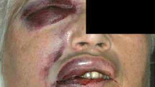 Endodontiális átöblítőfolyadékok és eljuttatási rendszerek