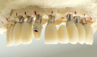 Módosított klinikai megközelítés a jobb esztétikai eredményekért a teljes fogív helyreállítása során