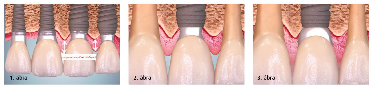 1. ábra: A PS implantátum formája elősegítette a csont megtartását a fognyaknál, illetve a nagyobb tömegű ínyrostszaporulat kialakulását. 2. ábra: Konkáv profilú ideiglenes abutment. 3. ábra: Konvex profilú végleges abutment.