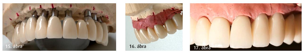15. ábra:  Egyénre szabott cirkónium CAD/CAM abutmentek és IPS e-max lítium-diszilikát (Ivoclar Vivadent) kerámiakoronák. 16. ábra: A lágyszövet formázása a kívánt esztétikai végeredményhez vezet. 17. ábra: Esztétikus gingiva-végállapotok, modellen bemutatva.
