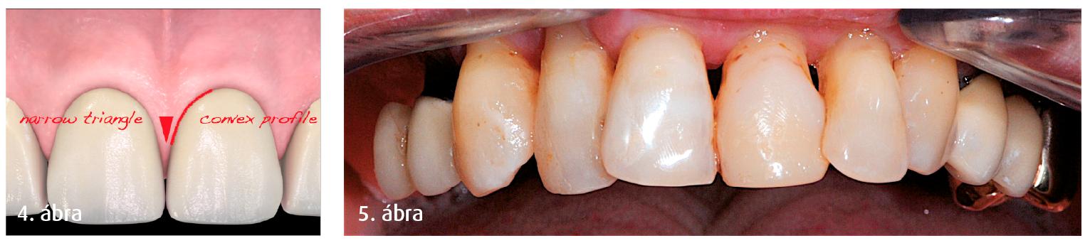 4. ábra: Keskeny háromszögek a végleges koronák között, amelyek visszaállítják a fiziológiás s természetes esztétikai hatást keltő kontaktpontokat. 5. ábra: Parodontálisan károdosodott fogak,  II. fokú mobilitás.