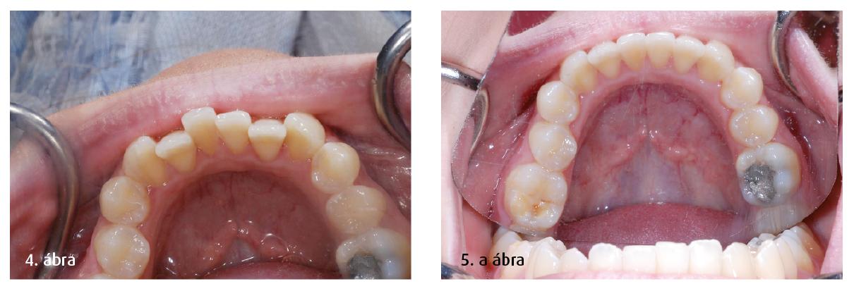 4. ábra: Az alsó fogak helyzete. 5. a ábra: Alsó fogak posztoperatív nézete.