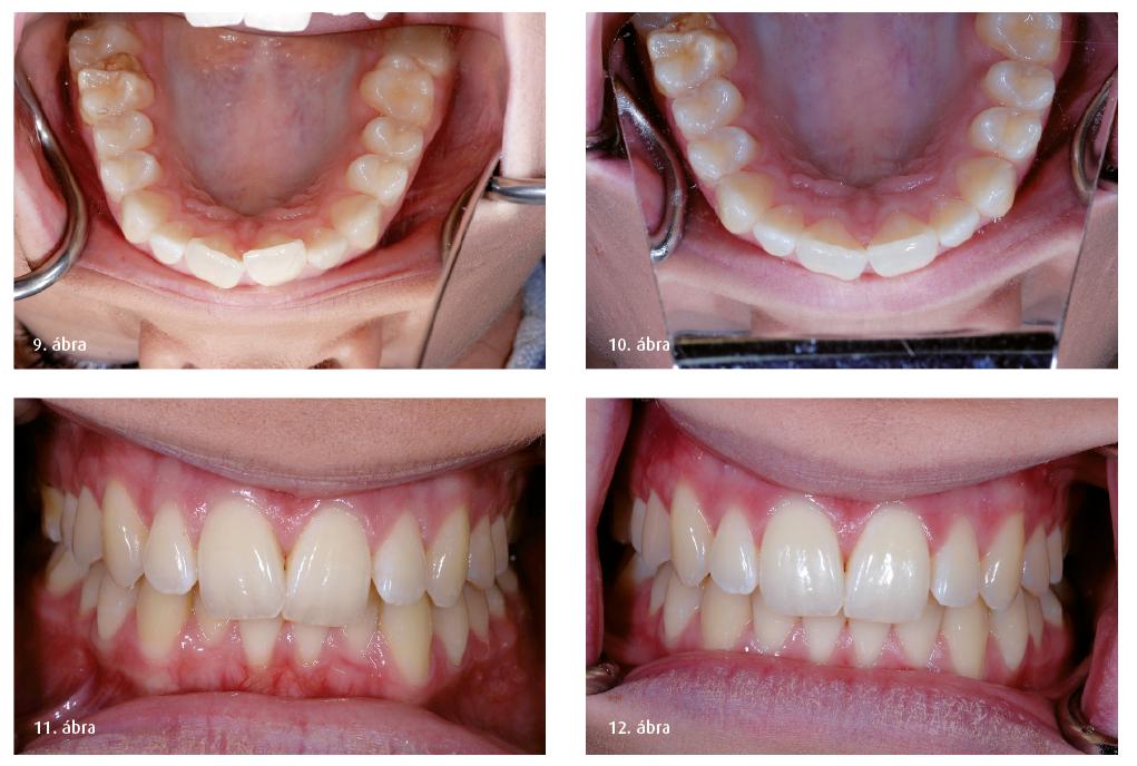 9. ábra: A felső fogak posztoperatív nézete. 10. ábra: A felső fogak kezelés utáni tükrözött képe. 11. ábra: Retraktált preoperatív közeli nézet. 12. ábra: Retraktált posztoperatív nézet.