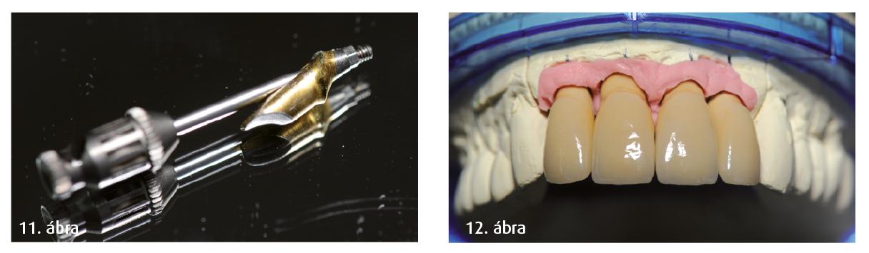 11. ábra: Betegspecifikus műcsonk a felhelyezés előtt. 12. ábra: Teljes személyre szabott koronarekonstrukció gipszöntvényen.