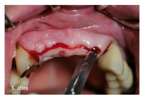 3. ábra: Implantátumfeltárás 4 hónappal a műtét után.