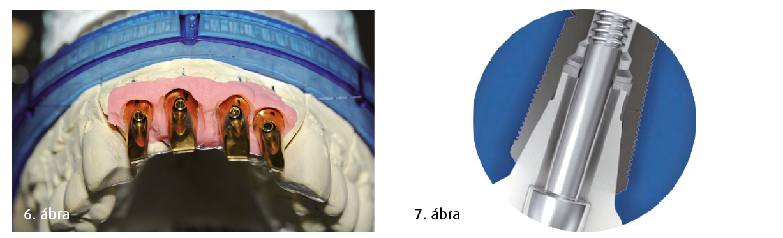 6. ábra: A kúp formájú csavaros implantátum sémás ábrázolása, egyénileg kialakított kúp alakú kapcsolattal az implantátum és a műcsonk között. 7. ábra: Műcsonkok a gipszöntvényeken gingivális maszkkal.