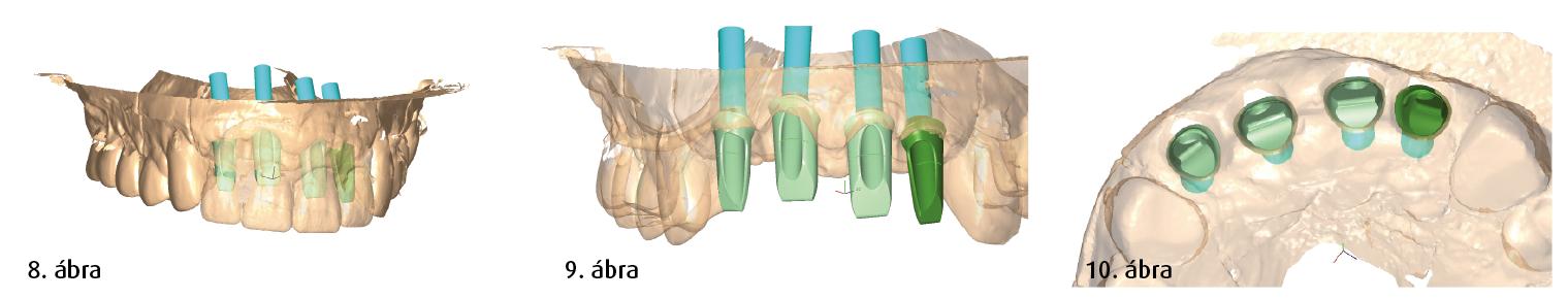 8. ábra: Virtuális 3D-modell egy műcsonk megtervezéséhez a későbbi koronákhoz. 9. ábra: Virtuális 3D-modell a betegspecifikus műcsonk tervezéséhez. 10. ábra: A műcsonk igazításának rágófelszín felőli nézete.