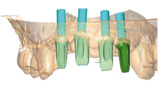 Személyre szabott műcsonkok CAD/CAM segítségével és egy újfajta implantátumforma