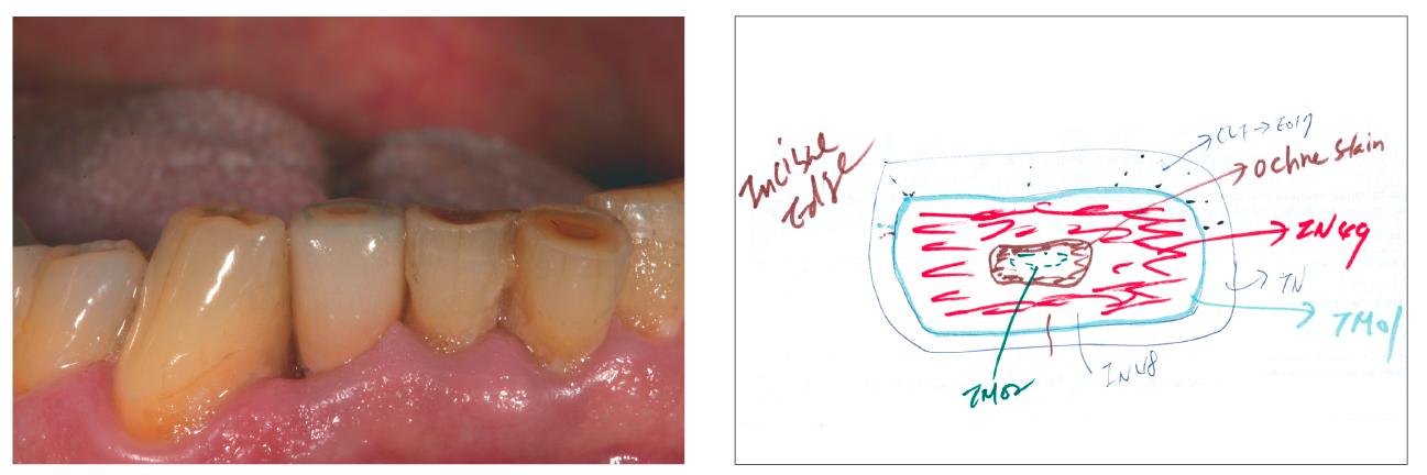 14. ábra: Preparáció előtt a 26-os fogat látjuk a páciens szájában. 15. ábra: A szerző egy színtérképet rajzolt az incizális szélekhez.