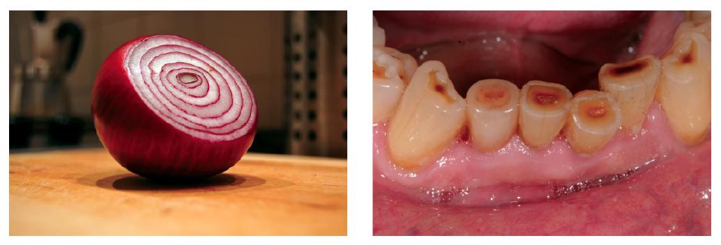 16. ábra: Lilahagyma félbevágva, ugyanazt a rétegezési effektust mutatja, amit a technikus porcelánból készít a helyreállításon. 17. ábra: Preoperatív kép, a technikus jegyzi a páciens fogainak erős nikotin általi elszíneződését.