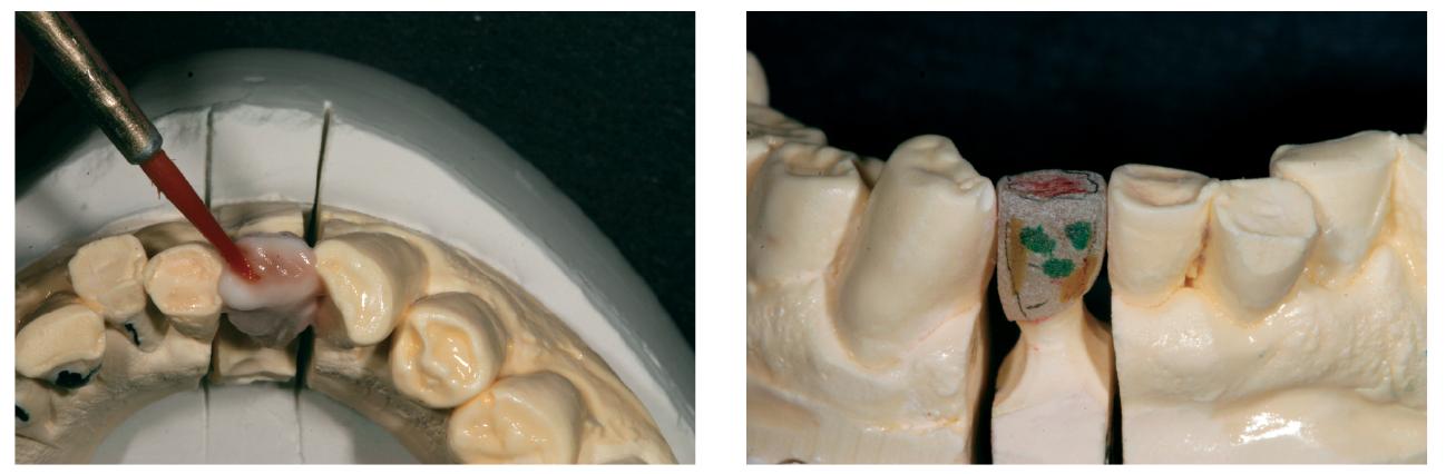 23. ábra: GC Initial InVivo okkerszínt viszünk fel a barna-narancs tónusért. 24. ábra: A korona az első dentinégetés stádiumában a technikus által megjelölve a fog morfológiájának és textúrájának applikáláshoz.