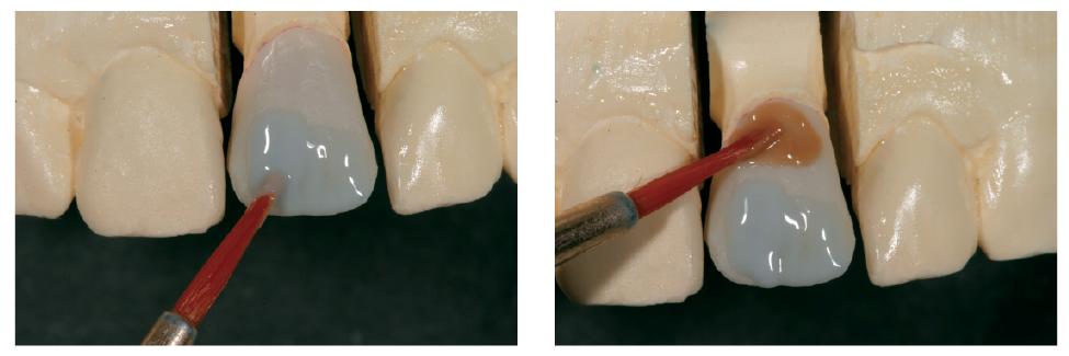 6. ábra: Opáleffekt kerül fel az incizális színért. 7. ábra: A gingivális színárnyalat készítése.