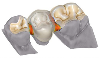 A CAD/CAM és a digitális fogászat alapfogalmai