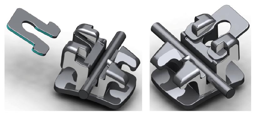 1. c ábra: A titán konvertálható elem eltávolítása, a kapocs konvencionális twin bracketté alakítása a titán önzáró elem eltávolításával.