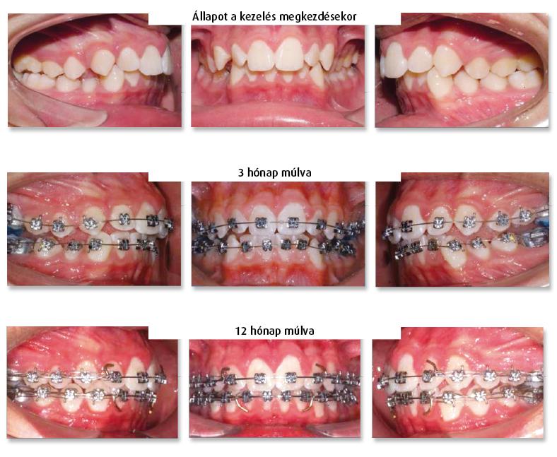 3. ábra: Class I. primer torlódás és szűkület gyors megoldása Damon szerint, diszartikulációval, 12 hónap elteltével az eset befejezése a fogsorok precíz illesztése, konvencionális othodontiai módszerekkel.