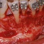 Sebészetileg támogatott  fogszabályozás