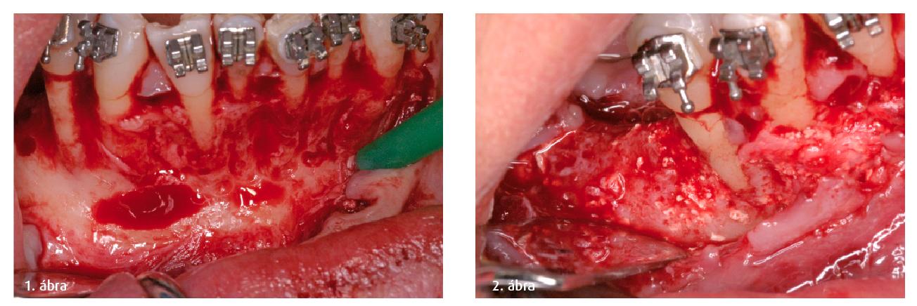 1. ábra: Nagymértékben reszorbeálódott gerinc a fogatlan területen, szemmel látható velejárója a csontdehiszcencia a 31-es, 42-es és 44-es fogaknál. A helyreállítást marhából származó xenogenikus csonttal (Endobone, Biomet 3i, USA) és felszívódó membránnal (Osseoguard, Biomet 3i, USA) végezték el. 2. ábra: Hat hónappal a sebészeti beavatkozás után egy csontintegrált implantátumot (Biomet 3i, USA) helyeztek be az augmentált területre. A 42-es fog csontos fenesztrációjának regenerálódása is szemmel látható, míg a 44-es kontrollfog változatlan maradt.