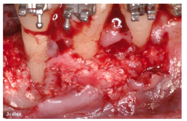 3. ábra: Az implantátum behelyezése előtt fogszabályozó kezelésre van szükség.