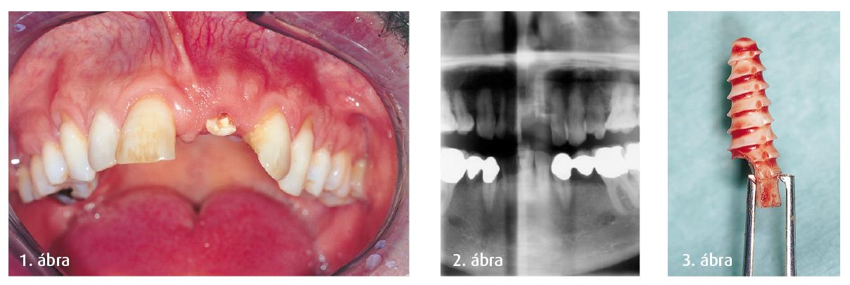 1. ábra: A törés utáni állapot, frontális nézet. 2. ábra: A törött implantátum röntgenképe. 3. ábra: A törött implantátum.