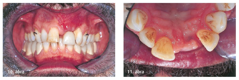 10. ábra: Ideiglenes resztoráció, kivehető fogsorral. 11. ábra: Gyógyulás utáni szituáció, okkluzális nézet.