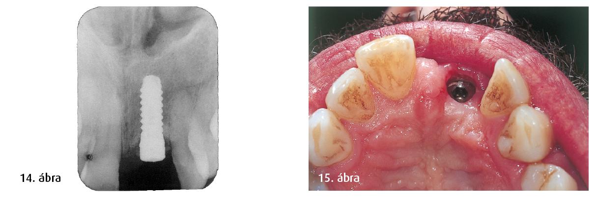 14. ábra: Az implantátum osszeointegrációja jól sikerült. 15. ábra: Feltárás utáni gingivaszituáció.