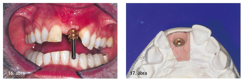 16. ábra: Behelyezett lenyomatvételi csavar. 17. ábra: Lenyomatvétel után elkészül a gingivális pótlás.