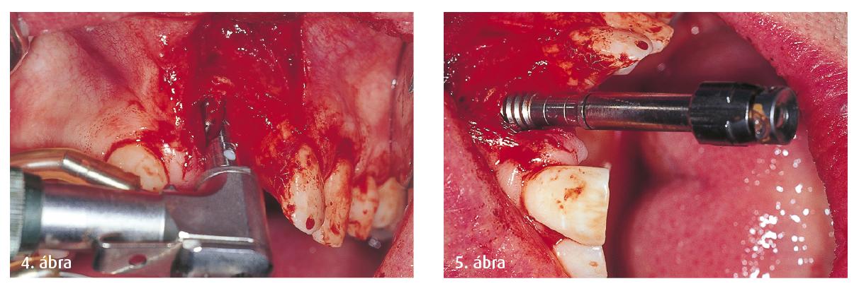 4. ábra: Pilotfúrás az implantátumüreg mélyítésére. 5. ábra: Az implantátumüreg mechanikai előkészítése után vágógép alkalmazása.