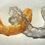 A háromdimenziós nyomtatás fogászati alkalmazásai