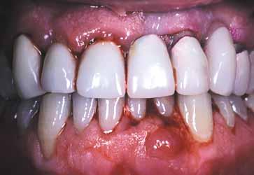 A fogínygyulladás kezelésében is hatékonynak tűnik az oxantel nevű gyógyszer – olvasható az Antimicrobial Agents and Chemotherapy oldalain